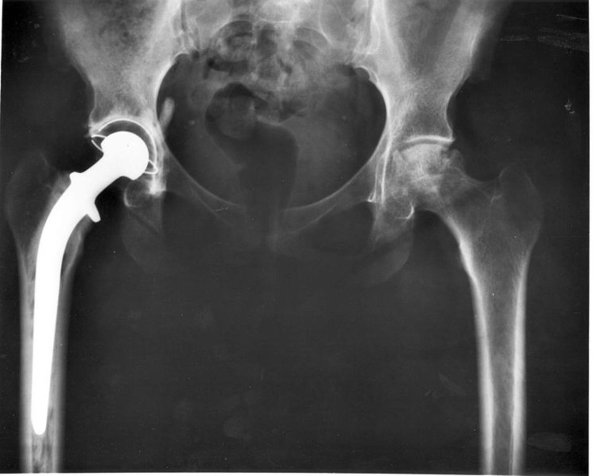 X-ray of right hip replacement