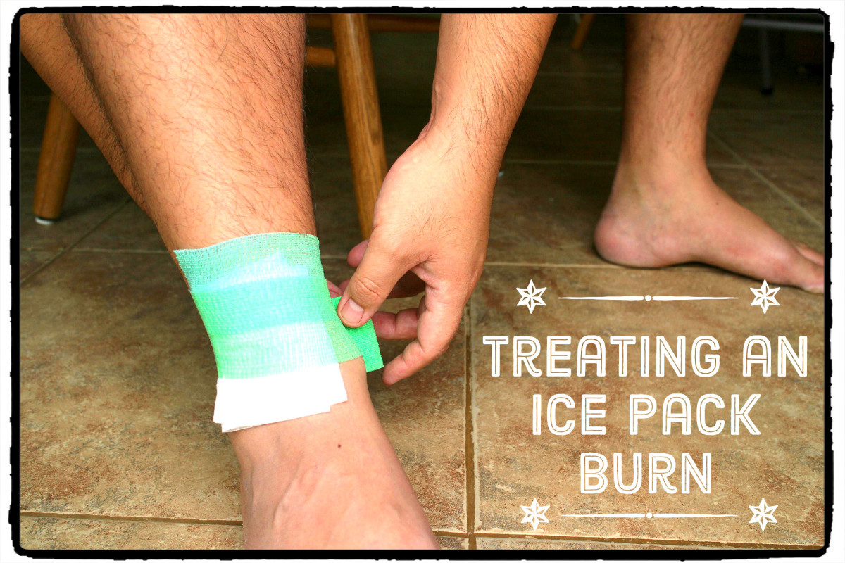 How to Treat a Cold Pack Burn