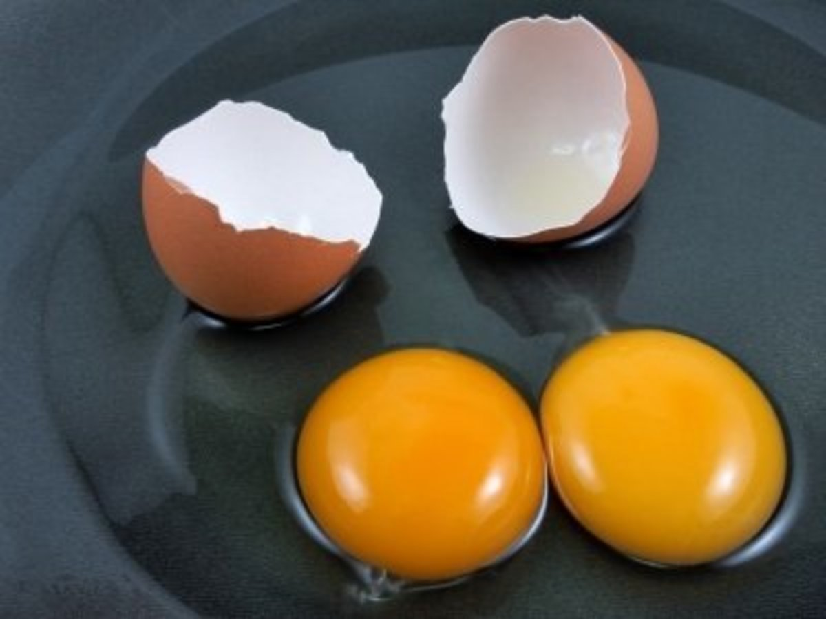 What Causes High LDL  (Bad Cholesterol)?