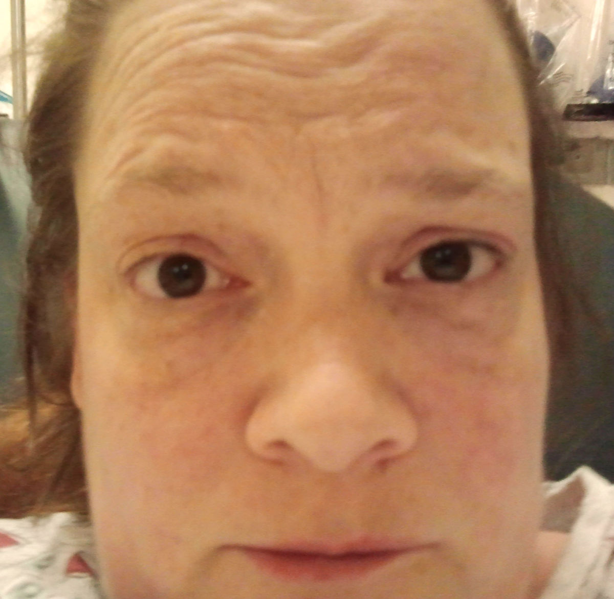 This person believes that her gallbladder is trying to kill her. Don't try this at home, folks. (Yes, this was after the morphine and no, I do not know how one eye got higher than the other.)