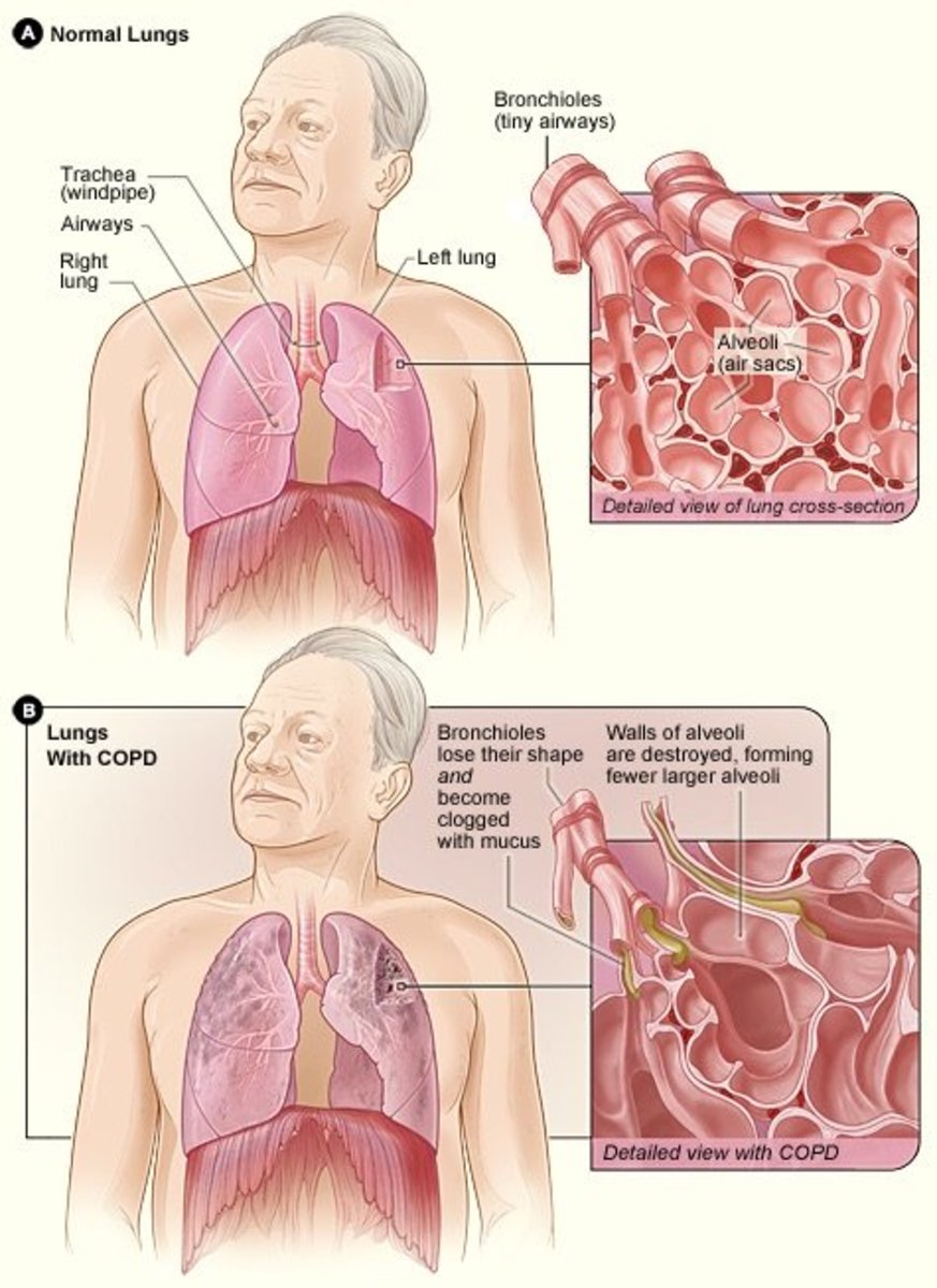 COPD results in excessive mucus buildup and lung damage.