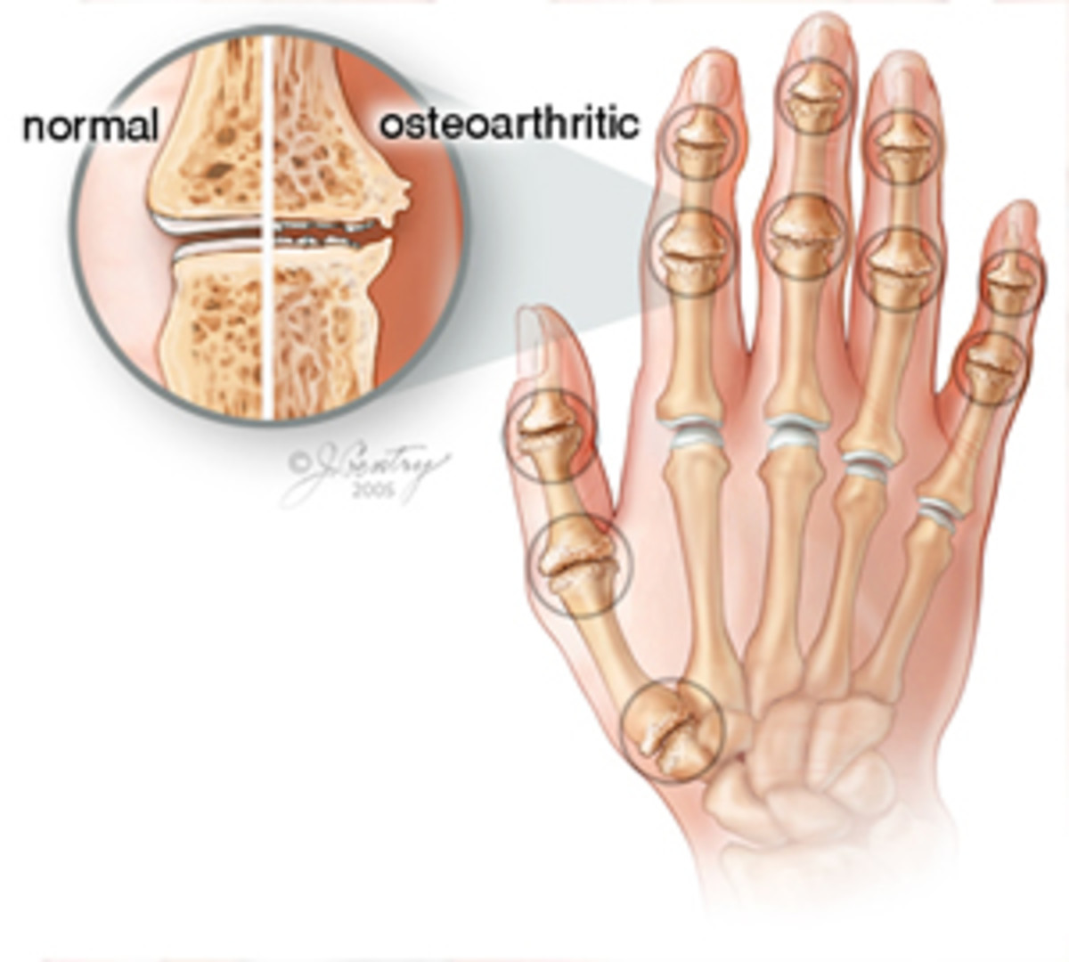 Osteoarthritis of the Hands