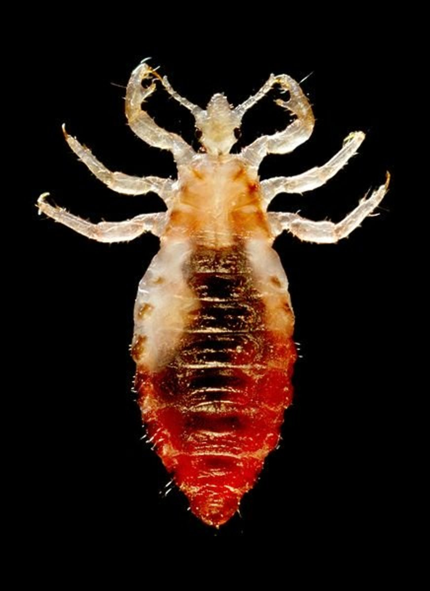 Male body louse. The dark mass in the middle of the body is its last meal: blood.