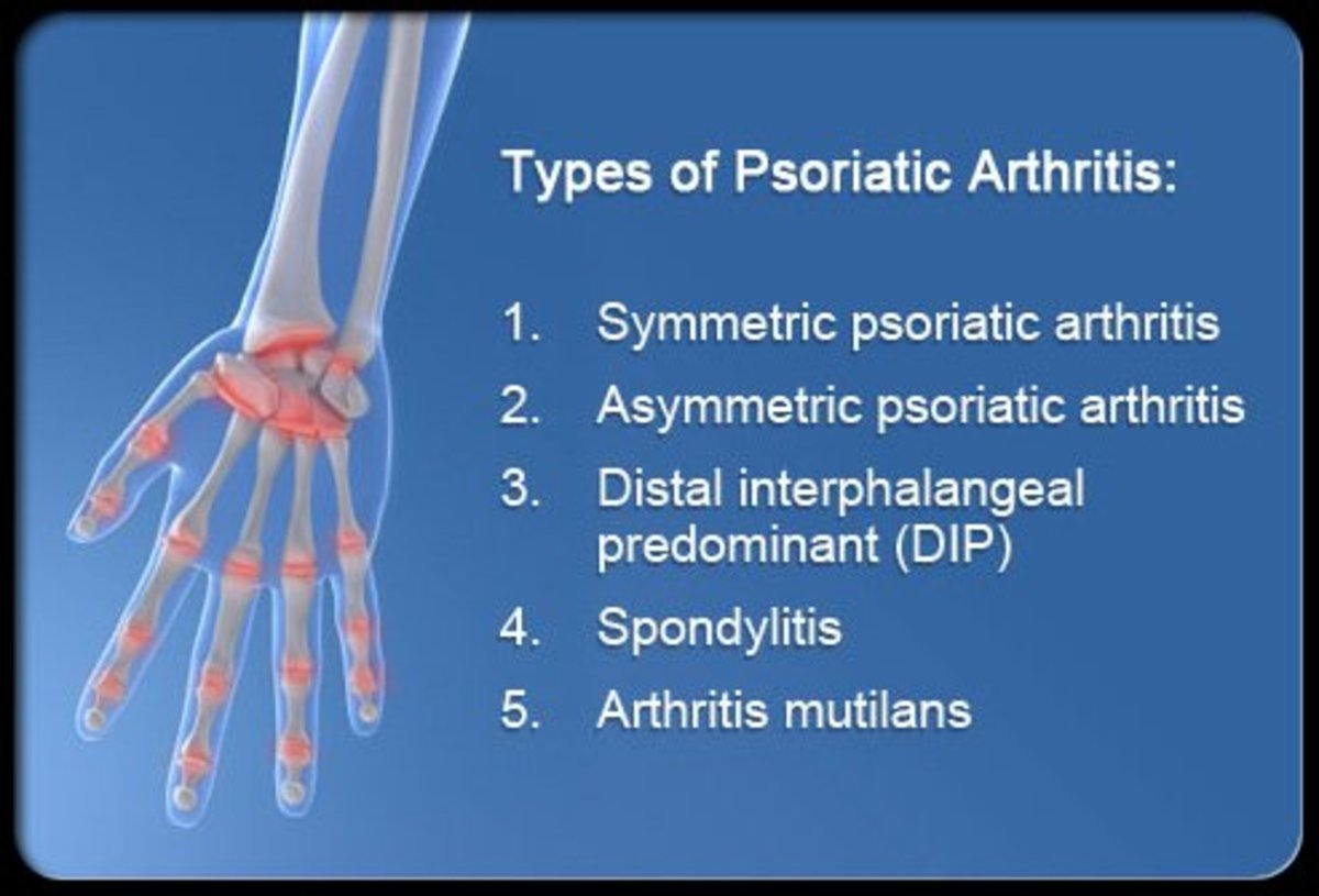 Symptoms, Causes, and Treatment of Psoriatic Arthritis