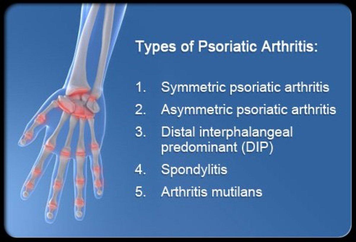 Symptoms Causes And Treatment Of Psoriatic Arthritis