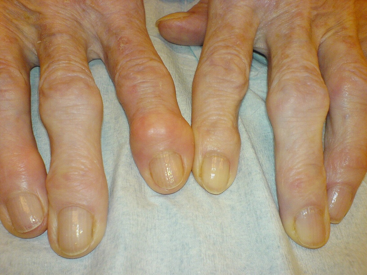 Osteoarthritis in the fingers; a bony enlargement known as a Heberden's node is located next to a fingernail