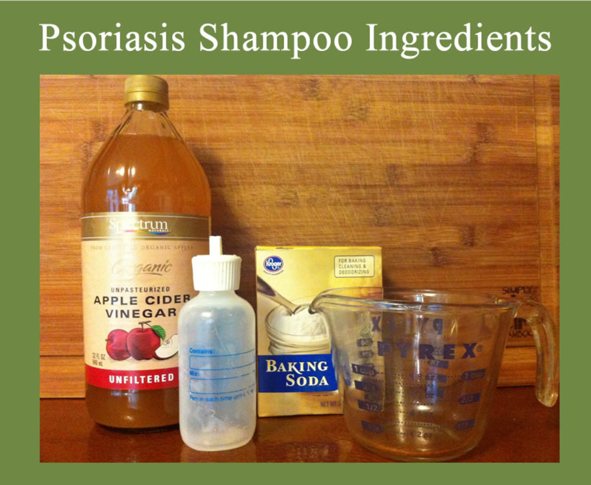 Homemade Natural Psoriasis Shampoo