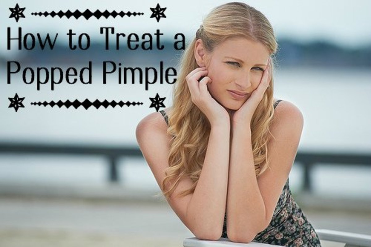 How to Treat a Bleeding Popped Pimple Wound