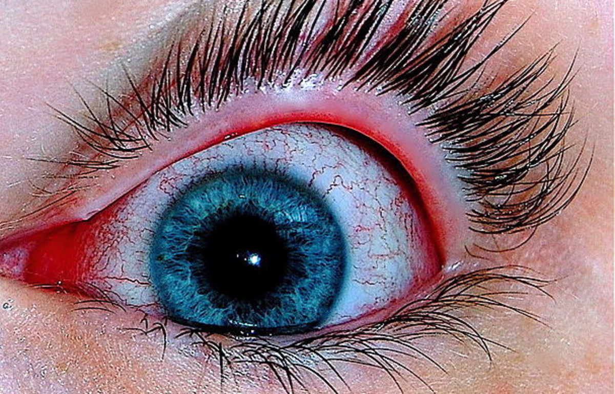 Conjunctivitis (Pink Eye) in Older Adults