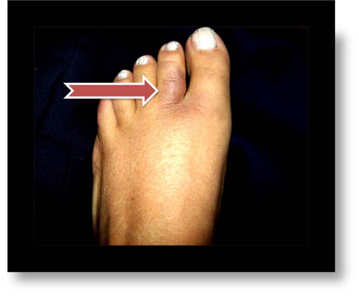Discoloration of a broken toe