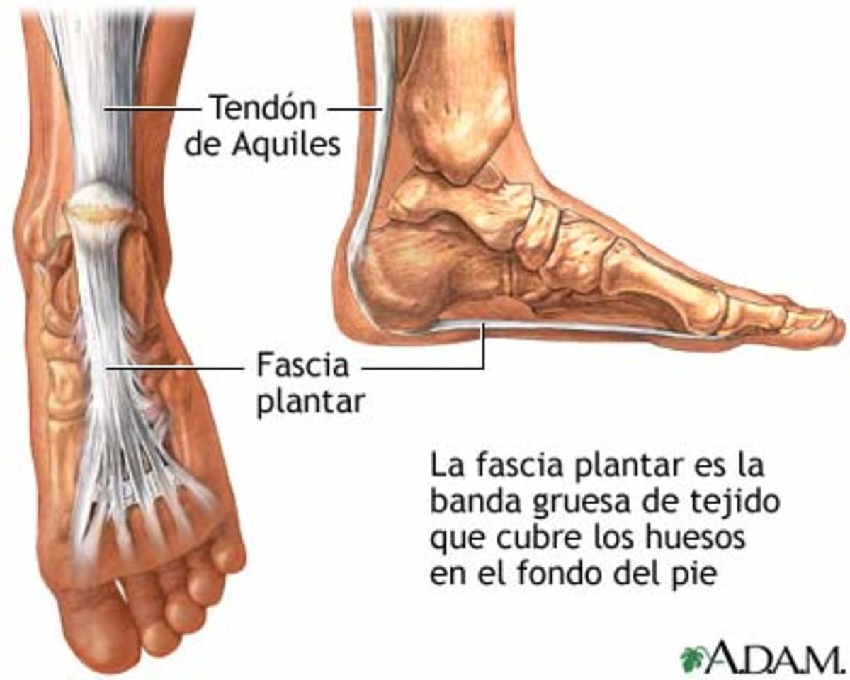 How I Fixed My Plantar Fasciitis for Good!