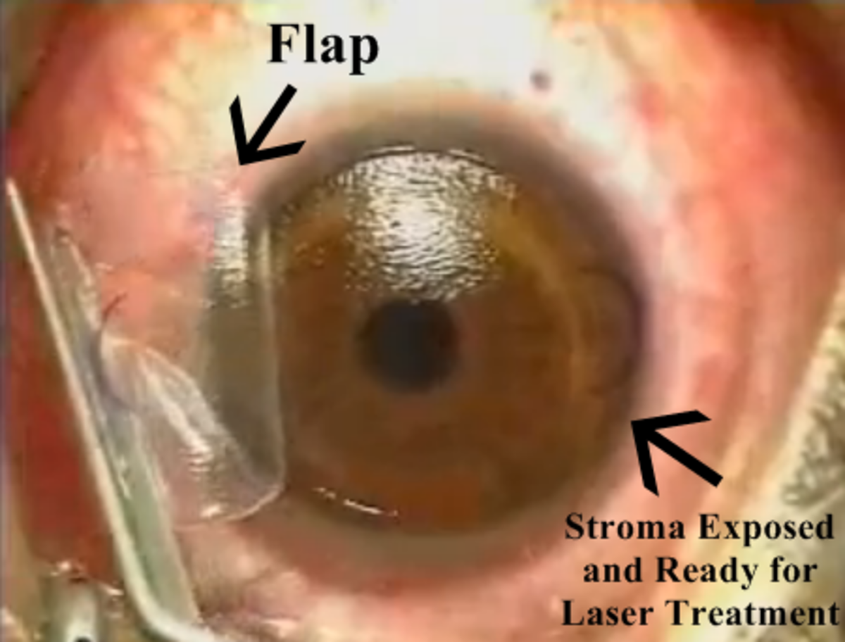 This is a still image from a LASIK procedure in which I assisted the ophthalmologist. You can clearly see the flap and the underlying stromal bed ready to be treated with laser.