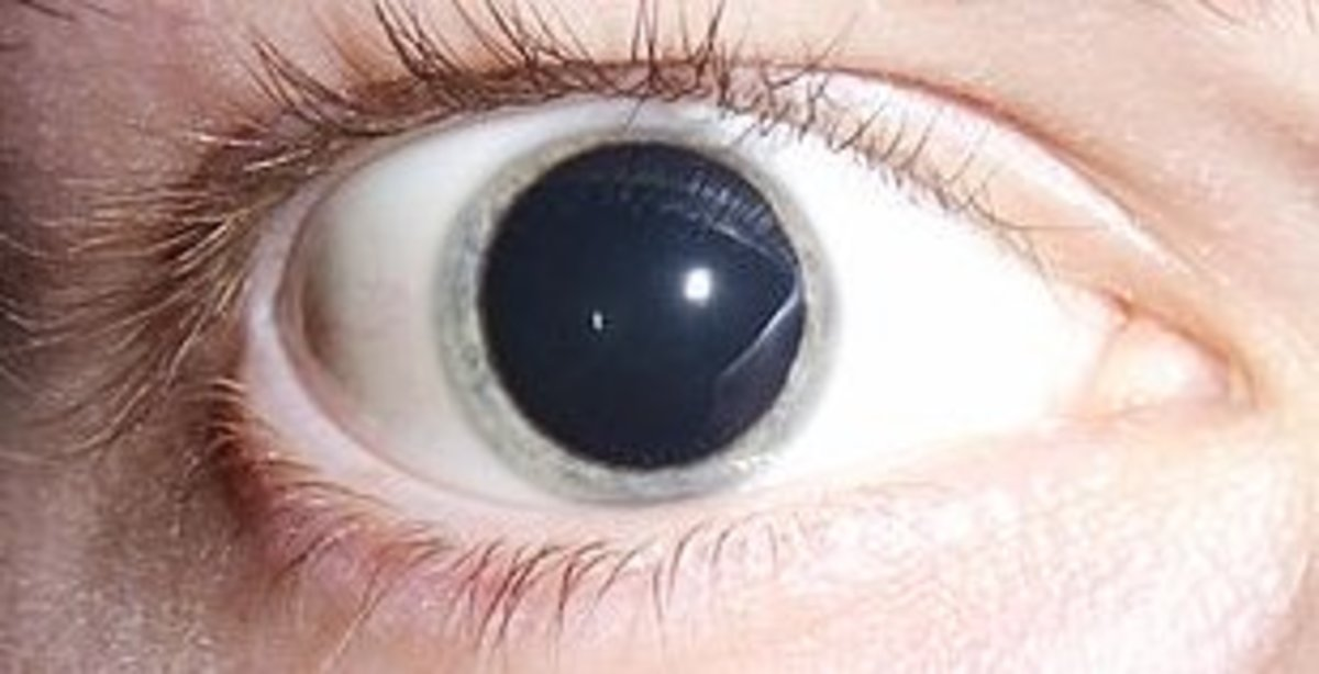 A completely dilated pupil.