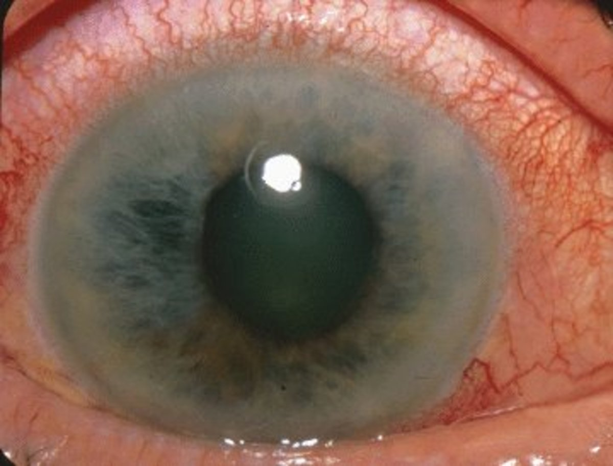 An eye suffering from acute narrow angle glaucoma