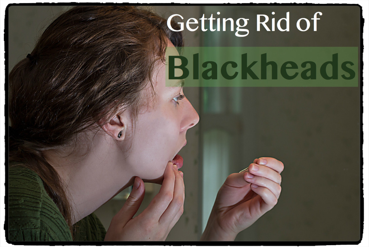 Rid of facial blackheads necessary words