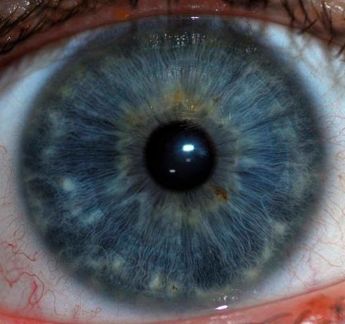 Definition of Dilation of the Eye