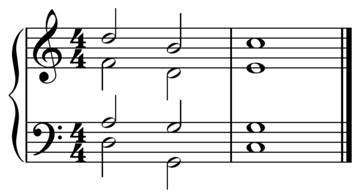 A typical cadence like you might find in a hymn tune using the chords ii-V-I