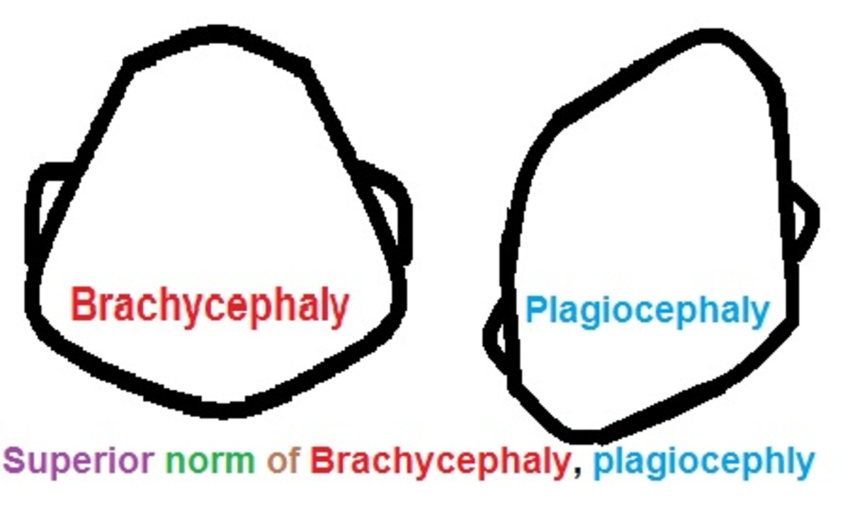 Plagiocephaly/Brachycephaly/Flat Head Syndrome: What It Is and How to Fix It.