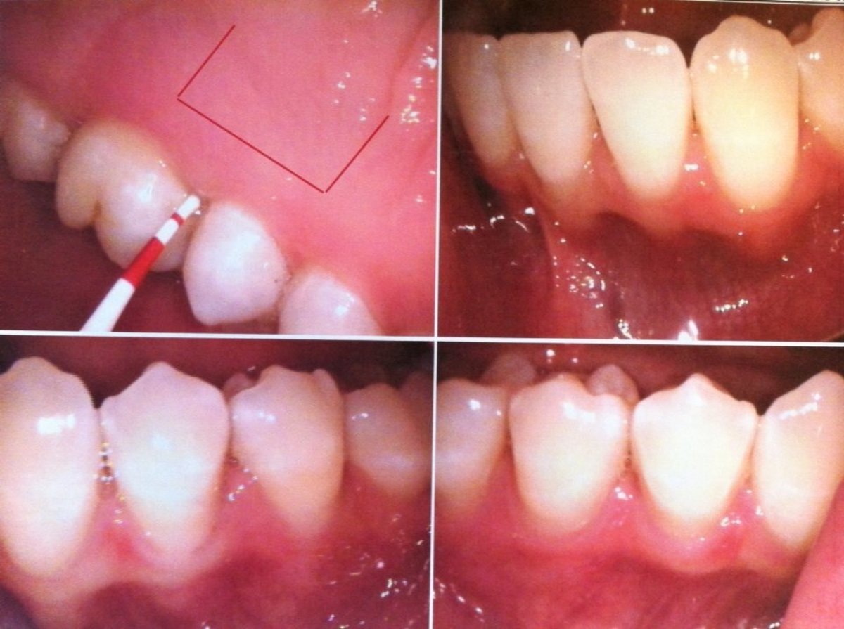 In my surgery with Dr. Chertok, a periodontist in Berkeley, a flap in the roof of my mouth was opened (see top left photo for an idea) and used to plump up the recessed gums around one of my teeth.