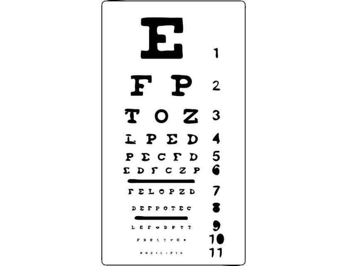 Losing My Eyesight to MacTel — Juxtafoveal Macular Telangiectasia