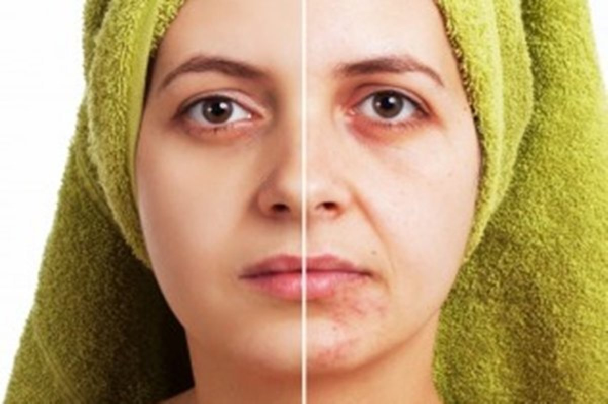 Natural Skin Lighteners For Scars