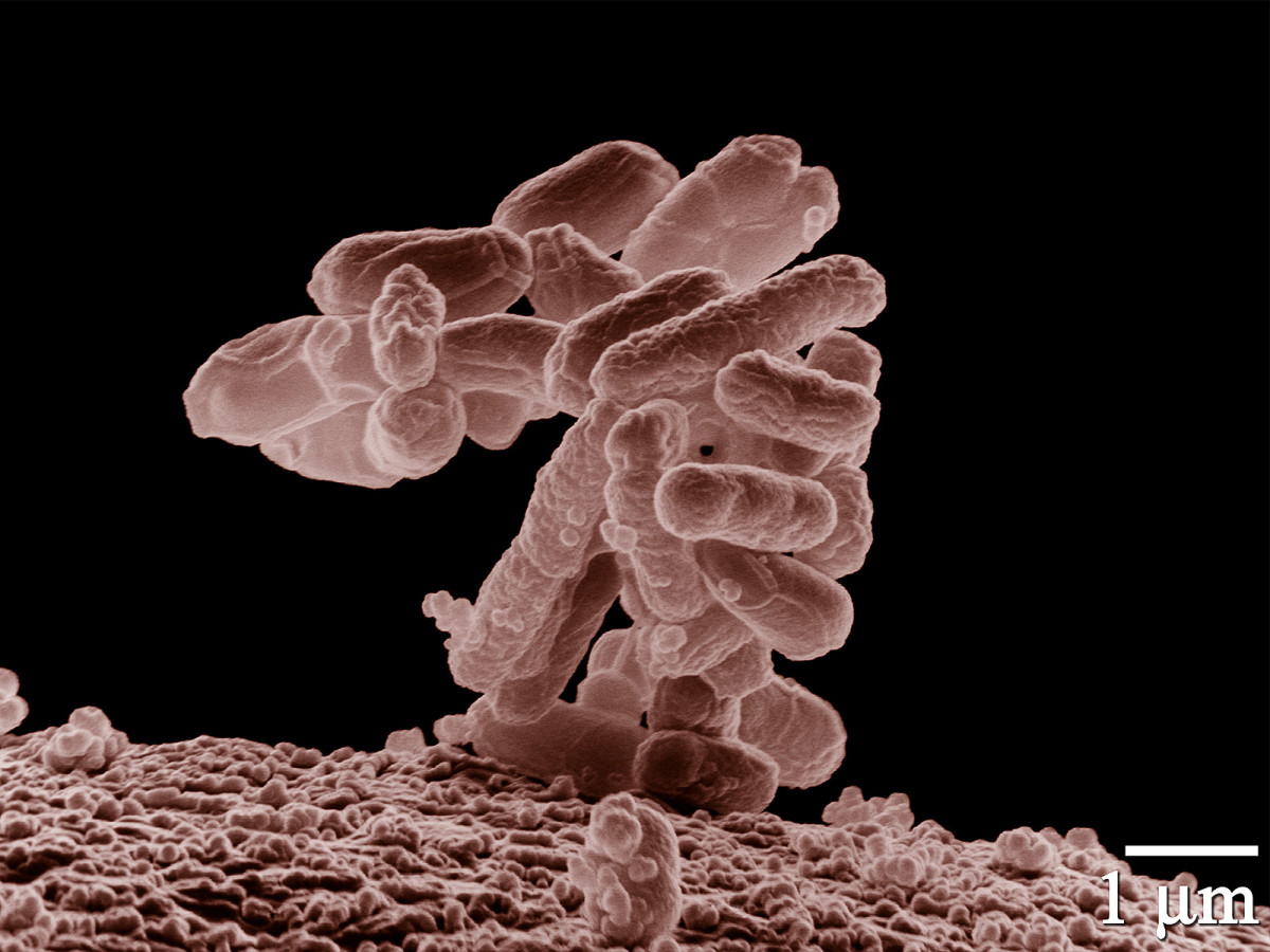 A cluster of E. coli cells