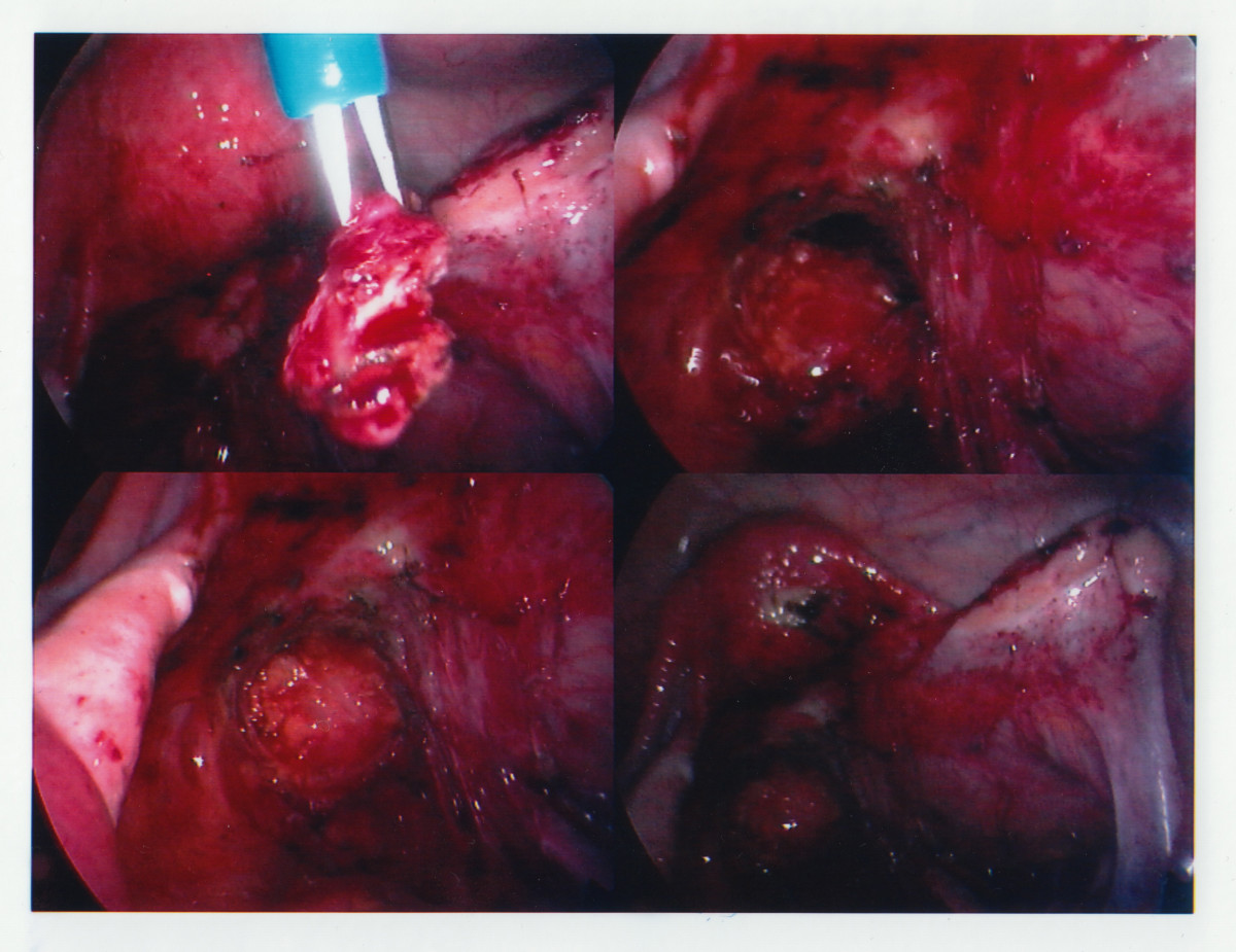 endometriosis - photo #20