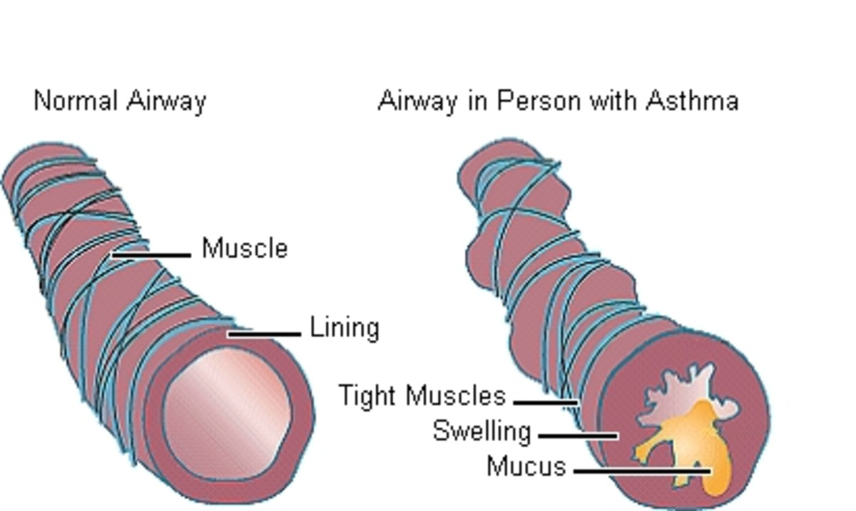 Asthma Triggers and Treatments