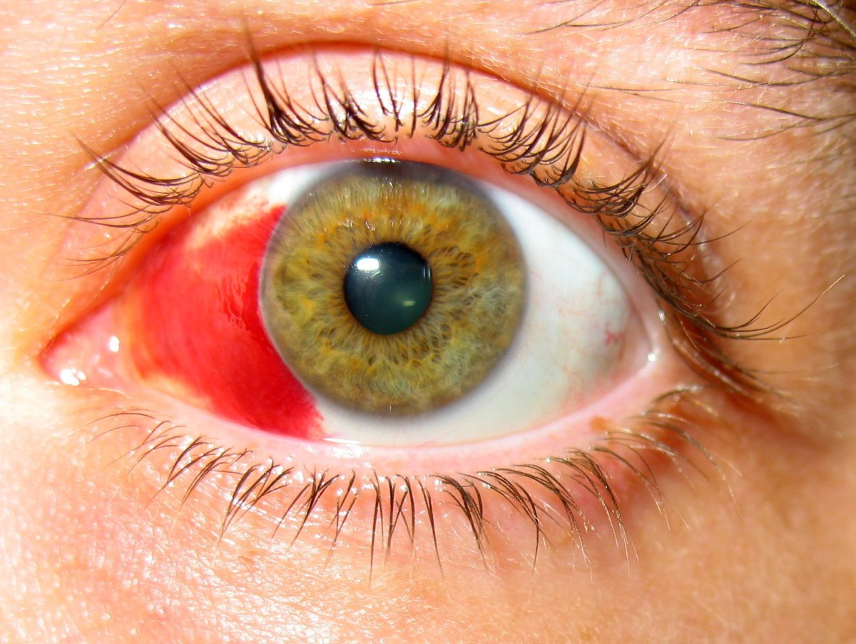Picture of a subconjunctival hemorrhage