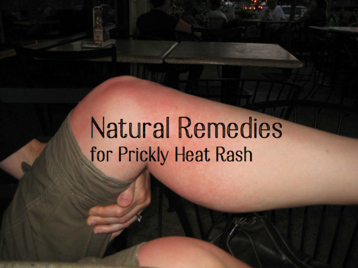 Natural Remedies For Skin Rash On Back