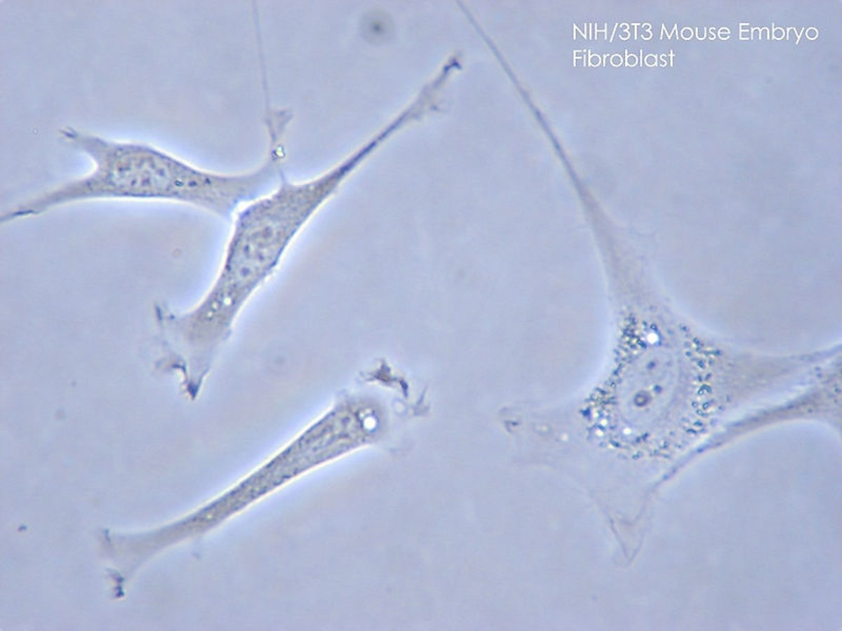 Fibroblasts in a mouse; as in humans, the fibroblasts make and secrete fibronectin.