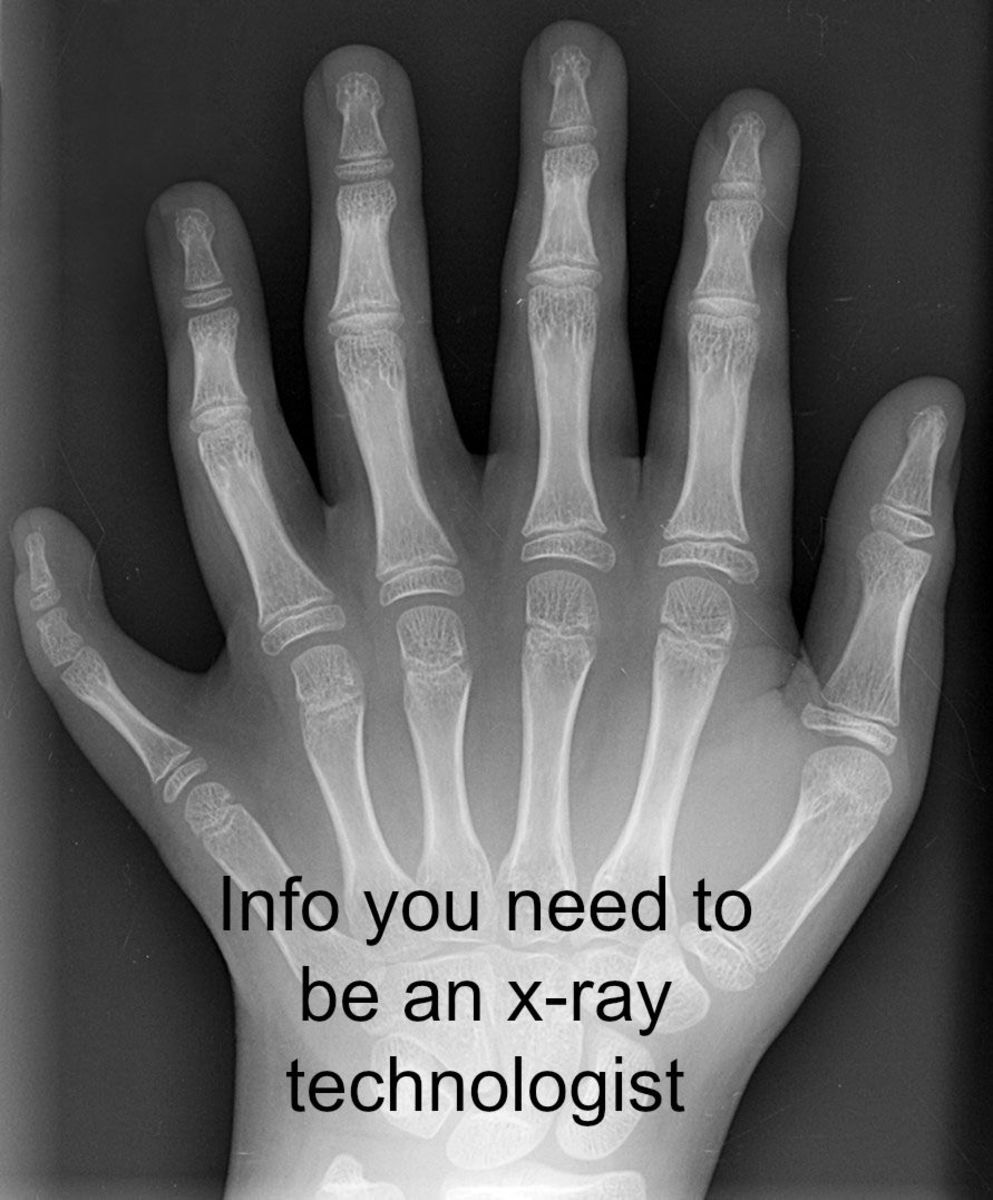 what you need to know if you want to be an x-ray tech | toughnickel, Human Body
