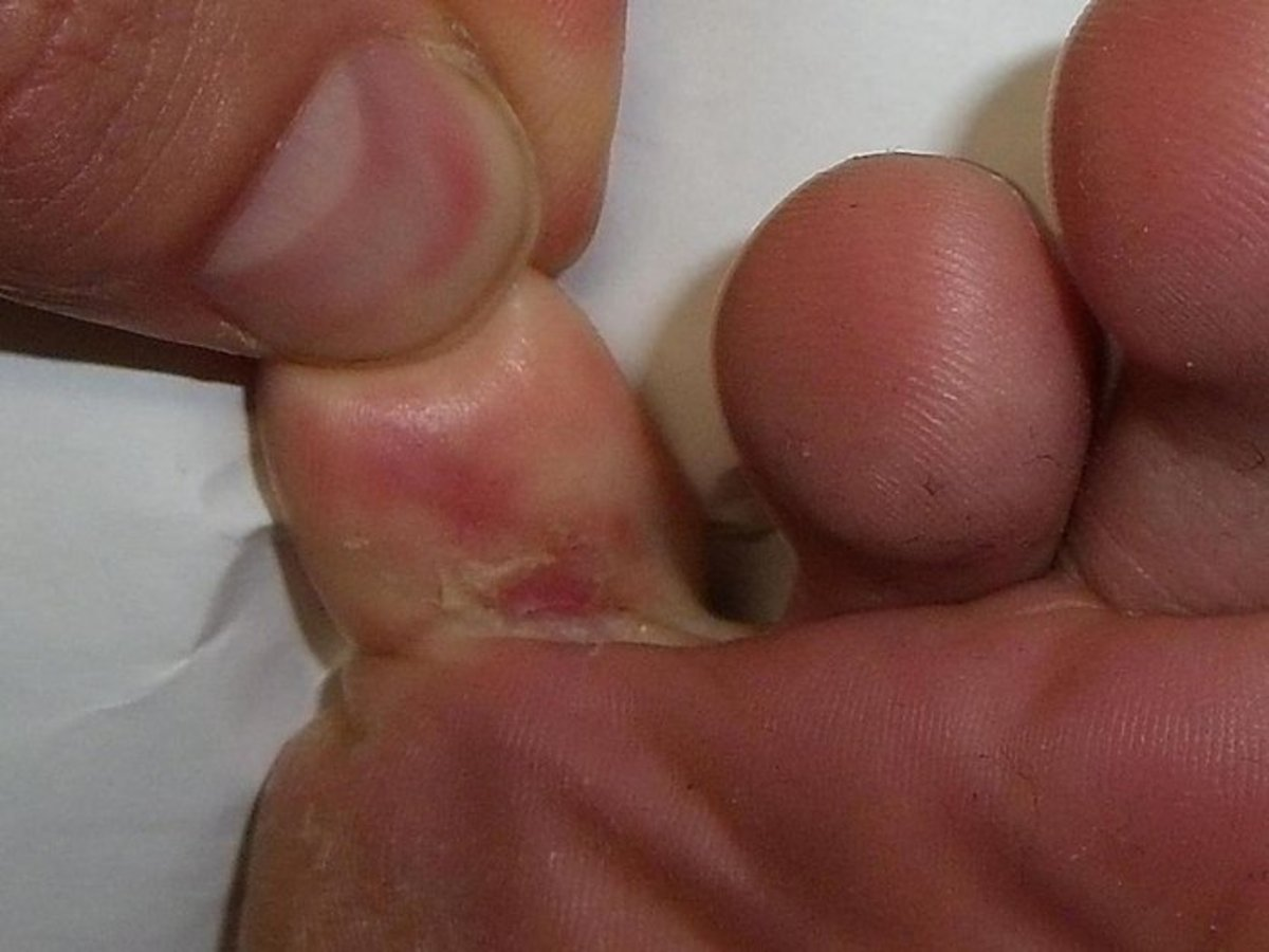 Interdigital athlete's foot between the toes and spreading around the side of foot.