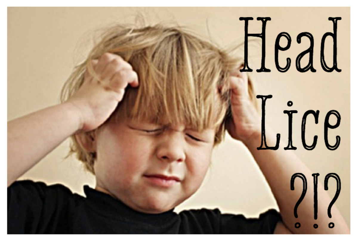 How to Get Rid of Head Lice Permanently!