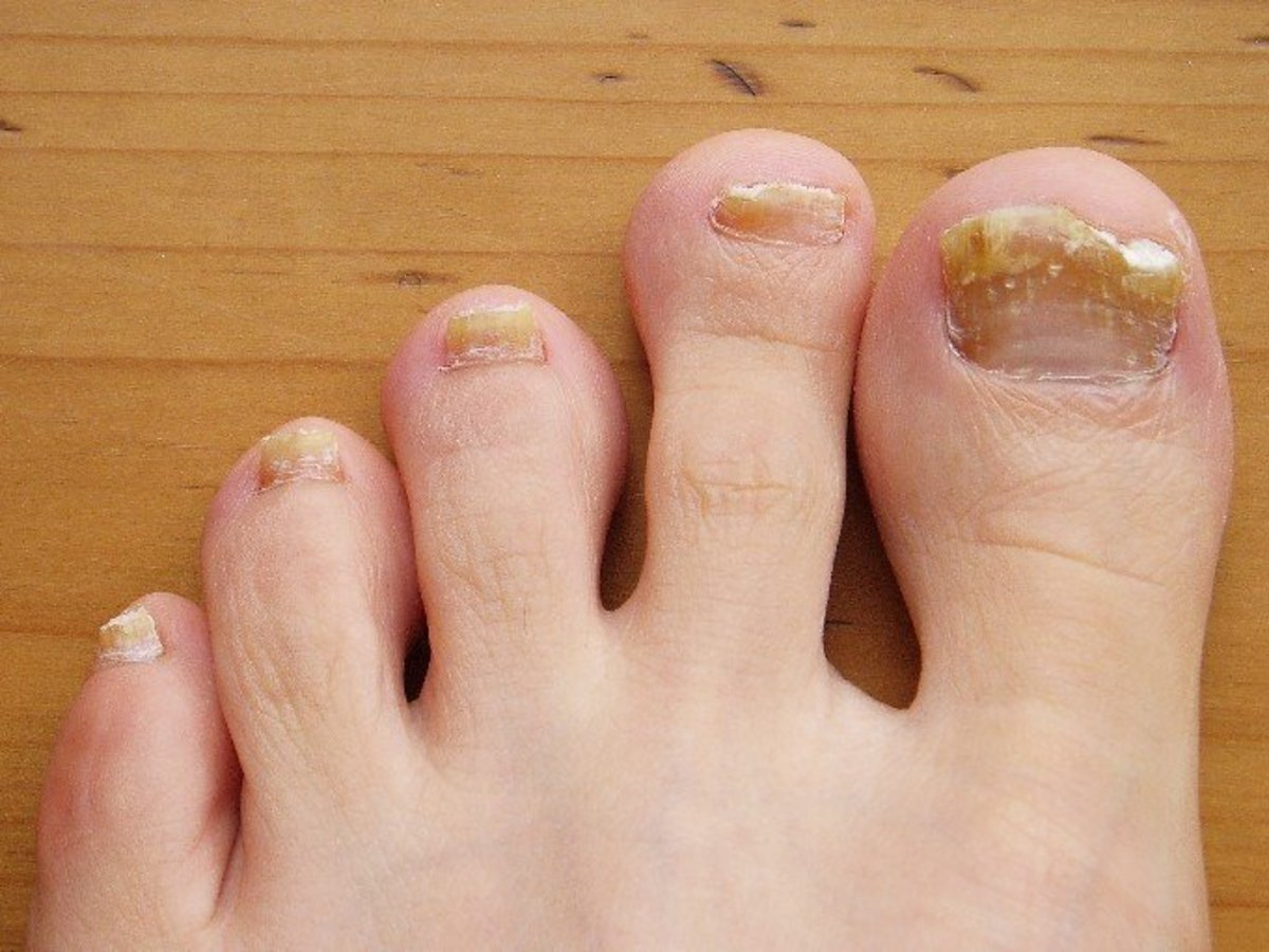Toenail fungus leads to discolored and brittle nails.