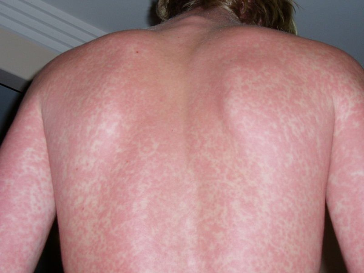 A sudden, severe rash covering the body should be checked out by a doctor