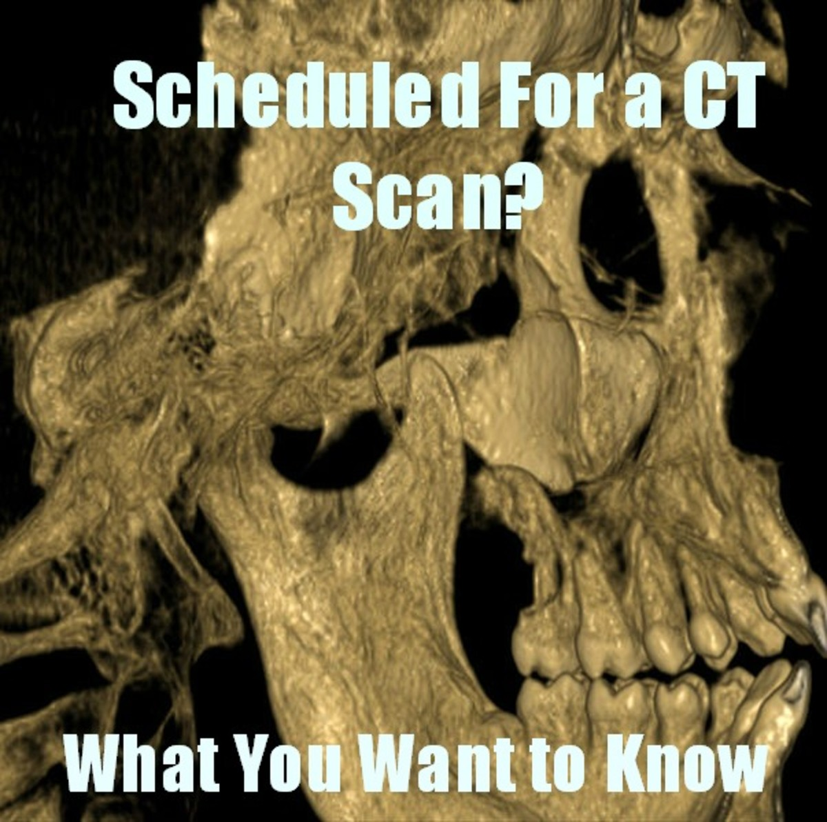 What to Expect When You Are Scheduled for a CT Scan