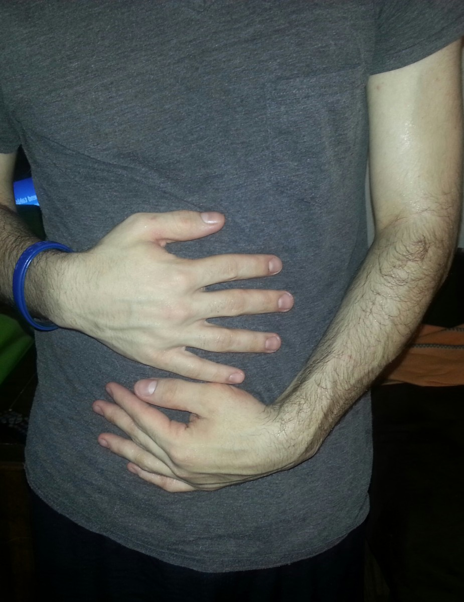 How Do I Know If I Have A Bowel Obstruction Healdove