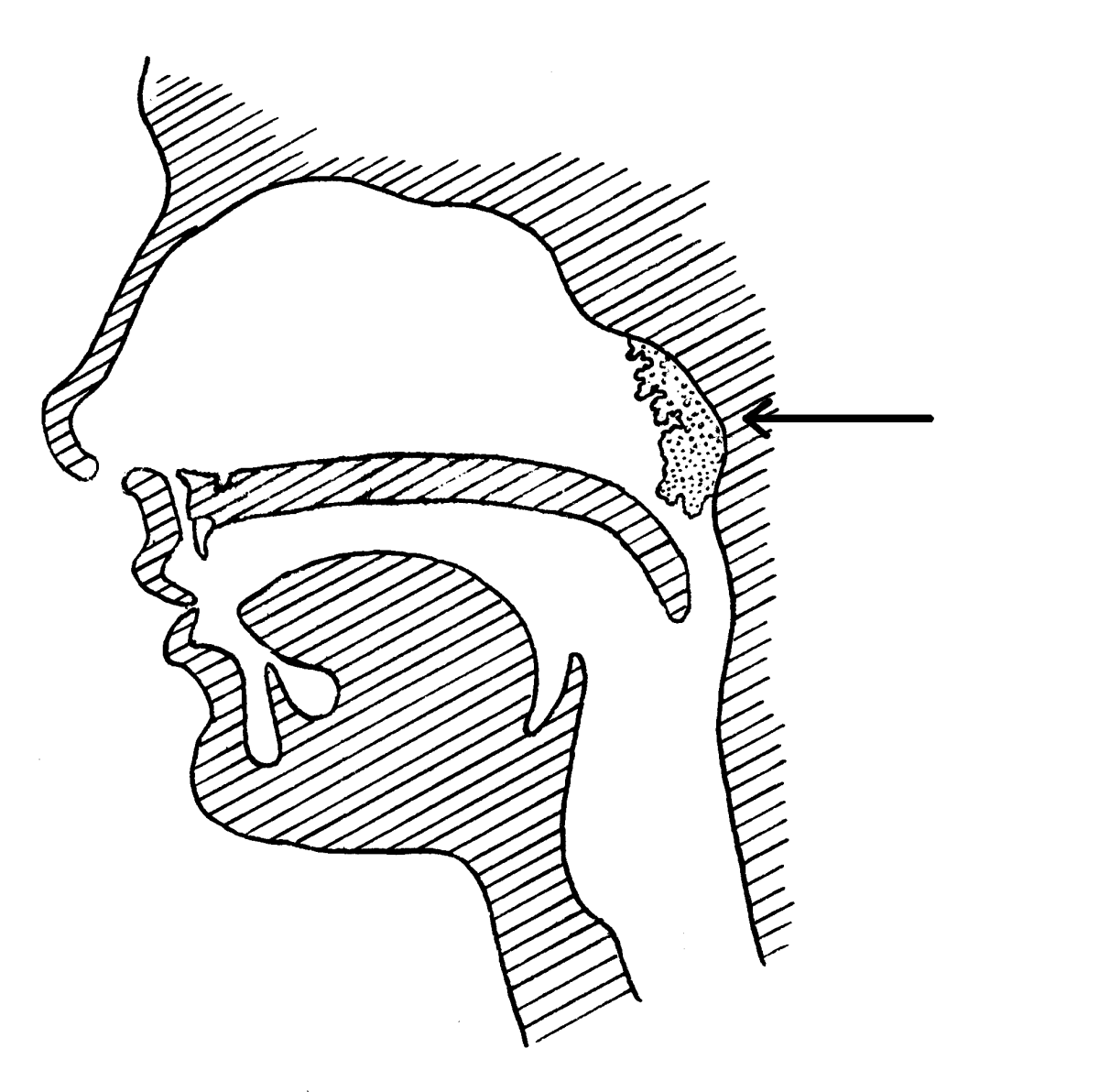 The arrow points to where the adenoids are located.