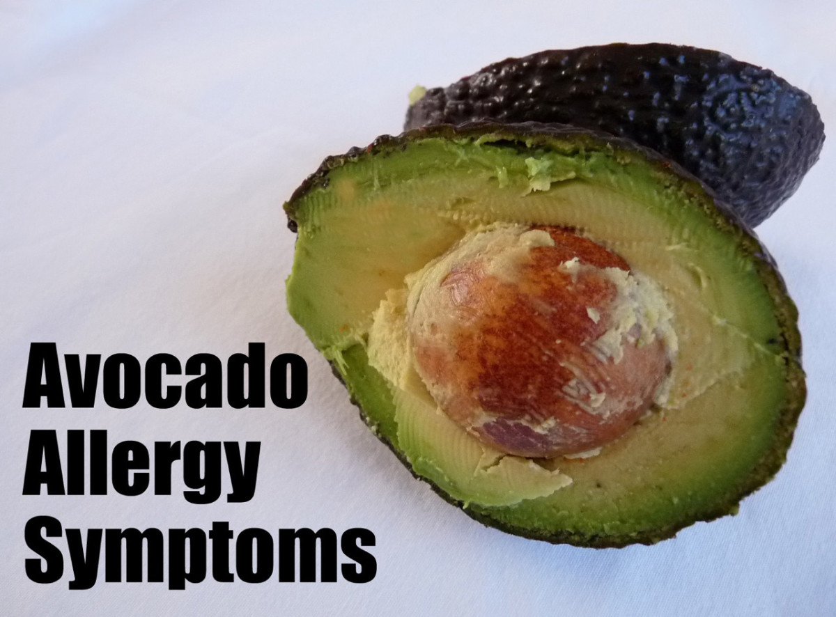 Avocado Allergy Symptoms