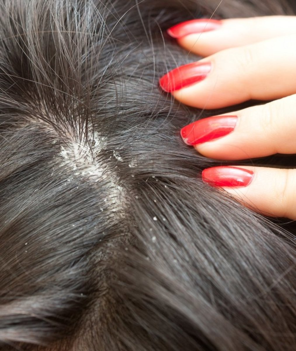 Home Cure For Dry, Flaky Scalp