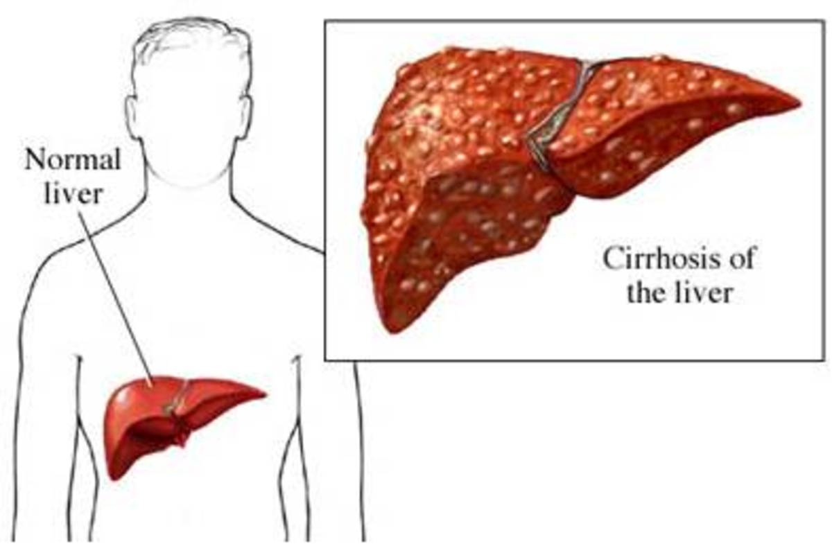 Autoimmune Hepatitis Causes Cirrhosis of the Liver