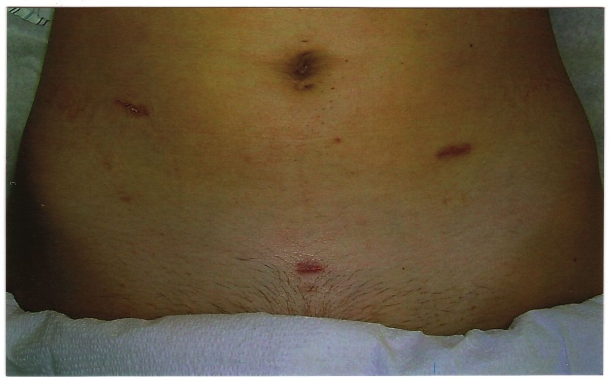 Example of laparoscopy surgery incisions.