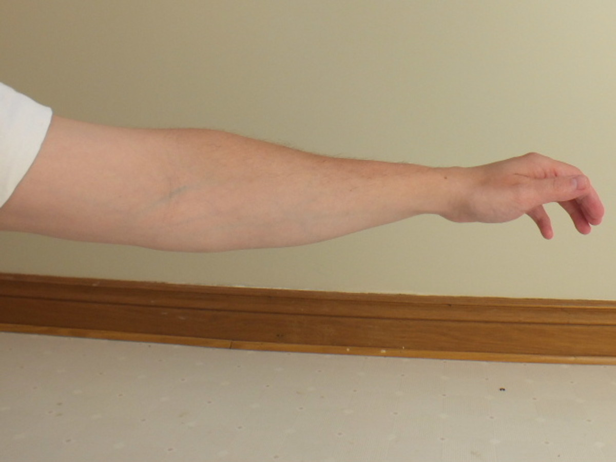 Arm with skinny forearm.