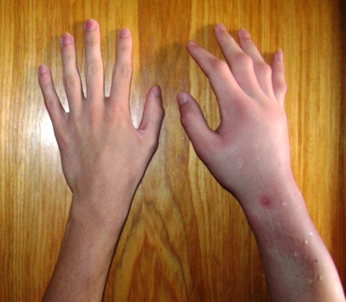 Picture Of A Bee Sting Reaction. Compare the right hand to the left.  There is lots of swelling in the right hand.