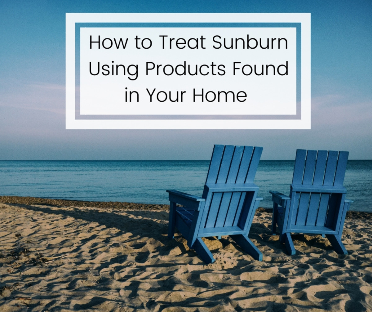 8 Remedies and Relief for Sunburn