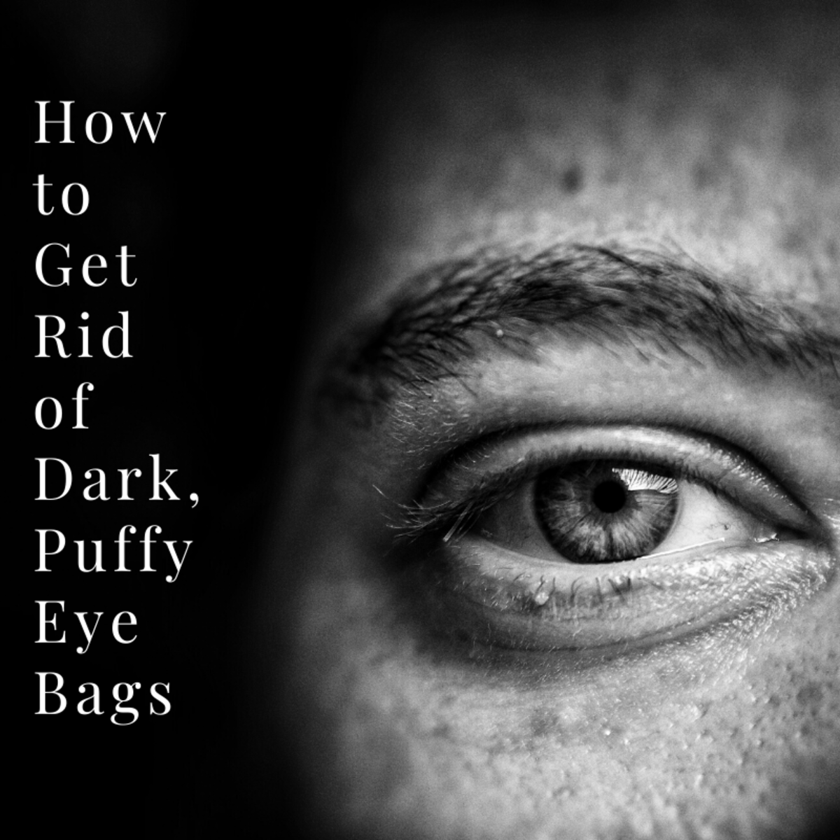 This article will break down what causes dark bags under the eyes and what you can do about them.