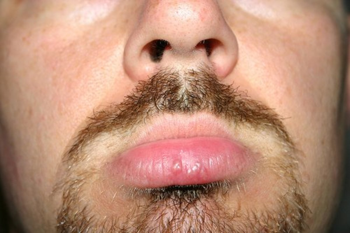 How to Prevent Fever Blisters and Cold Sores