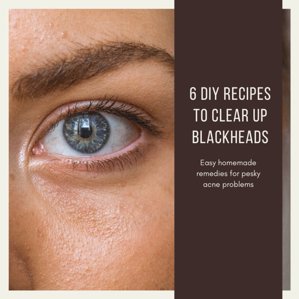 6 Homemade Recipes to Get Rid of Blackheads