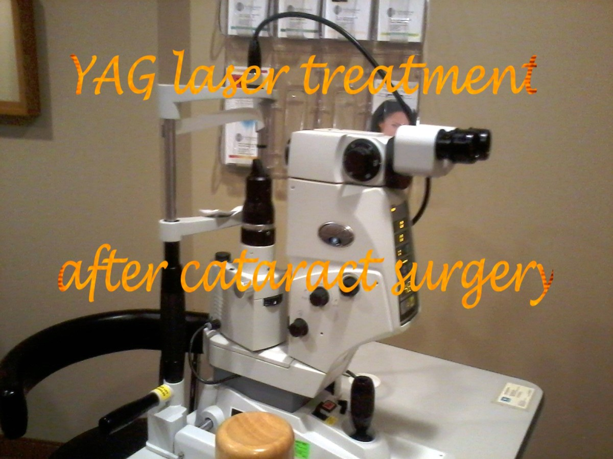A YAG laser.  The patient sits to the left, the doctor to the right.